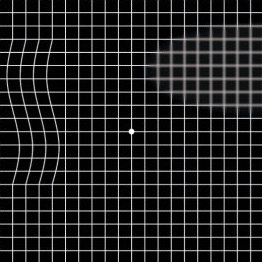 The amsler grid test, shown here, is an important tool for the early detection of any changes in your vision.