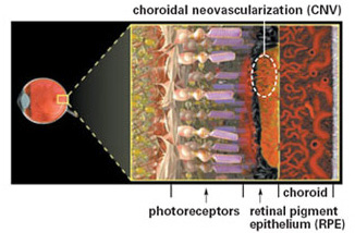In wet macular degeneration, new blood vessels grow underneath the retina in a process called choroidal neovascularization, or CNV.