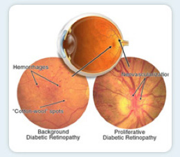 231689-diabetic-retinopathy-treatment