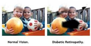 231690-diabetic-retinopathy-vision