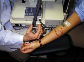 231702-fluorescein-indocyanine-angiography