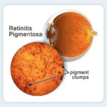 Retinitis pigmentosa (RP) is a rare, hereditary disease that causes the rod photoreceptors in the retina to gradually deteriorate.