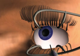 After preparation, the eyelids are pulled back and Macugen is injected into the vitreous body of the eye.