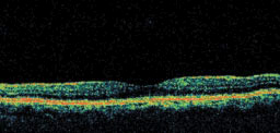 This is an OCT image of the macula of a normal, healthy eye. The depression in the center is the fovea. The colors in the OCT image represent the different layers of the retina. Note how smooth and even the layers are.