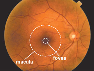 This photograph shows a normal, healthy retina as viewed by an eye doctor during an examination.