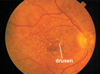 This retinal photograph shows numerous yellow drusen in and around the macular region of the retina.