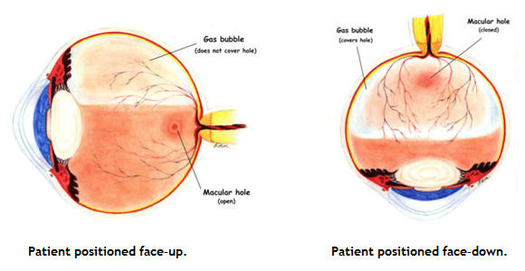 Because the macula is located in the back part of the eye, a patient's head must remain in a face–down orientation to allow the air bubble to rise toward the back of the eye and exert this pressure.