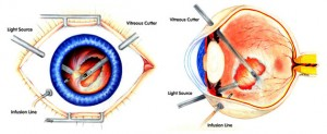 231767-vitrectomy-outpatient-surgery