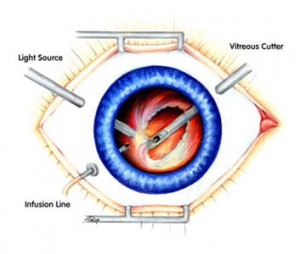 231768-vitrectomy-retinal-surgery