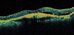 This is an OCT image of the macula in an eye with wet macular degeneration. The affected tissue layers beneath the retare no longer smooth and flat.